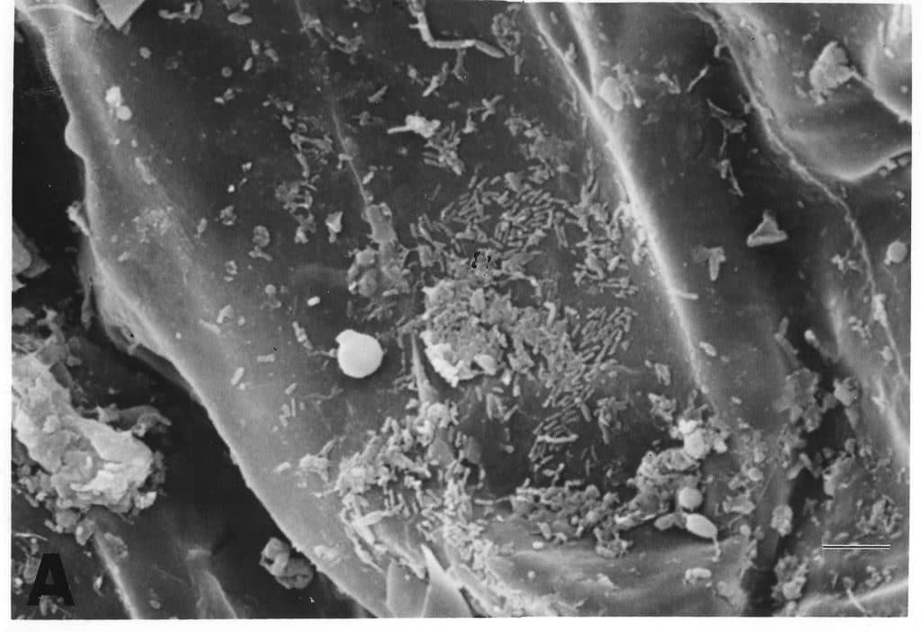 Bacteria and fungi